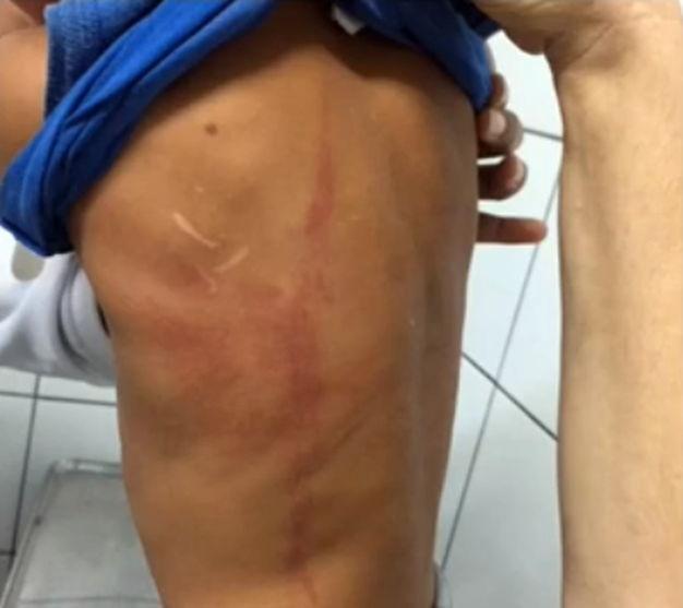 Mulher é presa suspeita de torturar filho de 3 anos