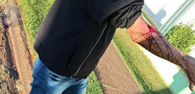 Homem fica ferido após ser atacado por cachorro em Arapongas